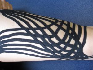 Kinesiotaping – jednoduchá pomoc od bolesti svalů a kloubů