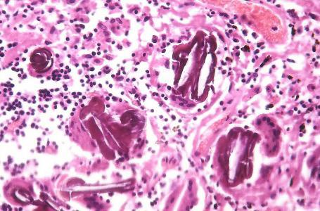 Vysoký cholesterol - náš nepřítel